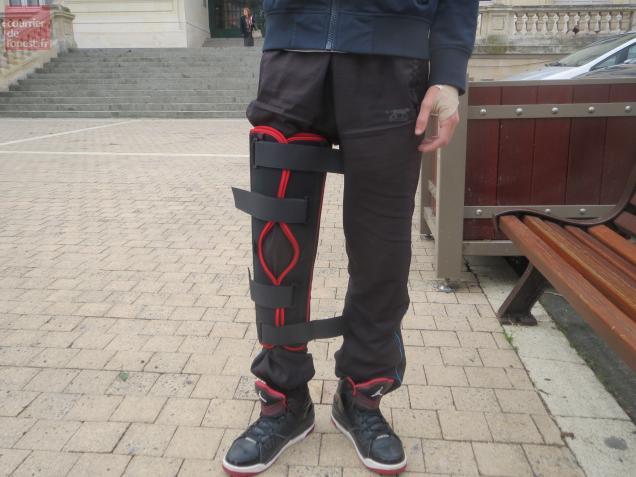 Le lycéen a notamment été frappé au genou.